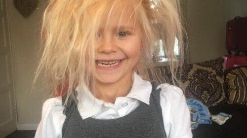 Через рідкісну генетичної особливості дівчинка стала схожа на троля (ФОТО)