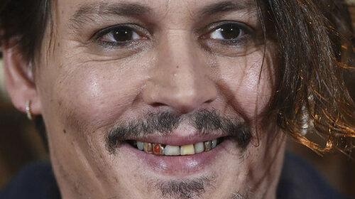 Зуб на зуб не потрапляє: знаменитості з негарною посмішкою, яку вони виправили