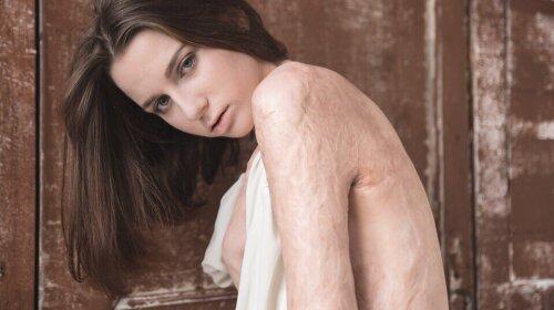 «Я милася у ванні, де мене душили»: обпалена модель розповіла про свою жахливу життя