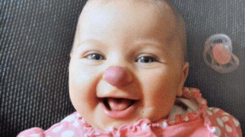 Что стало с девочкой с «клоунским» носом: как сейчас выглядит малышка
