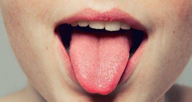 Почему появляются язвочки на языке: самые распространенные причины