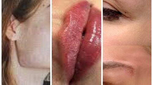 Вывернутые губы, лица-утюги: какие странные косметологические услуги стали популярными в последнее время