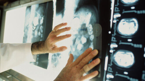 Врач-онколог назвал единственный способ избежать раковых заболеваний