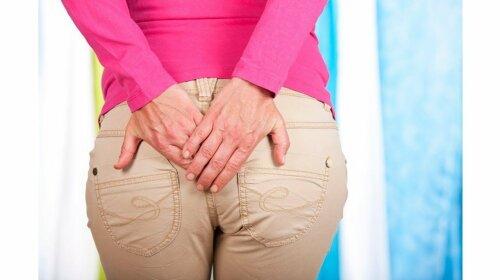Про це не прийнято говорити вголос: проктолог перерахував перші симптоми геморою