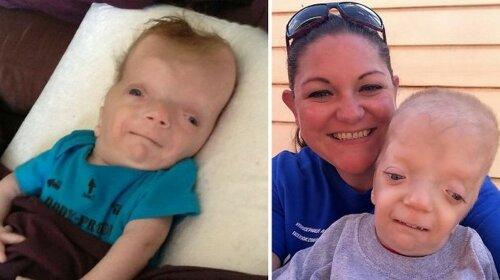 Мальчик родился с настолько редкой аномалией, что синдром назвали его именем