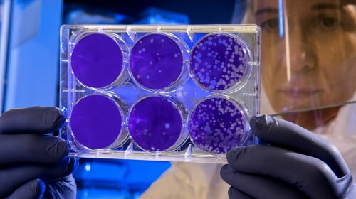 Живет во рту и не поддается антибиотикам: найдена бактерия, которая провоцирует множество опасных болезней