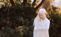 5 необычных фотографий альбиносов: уникальная подборка