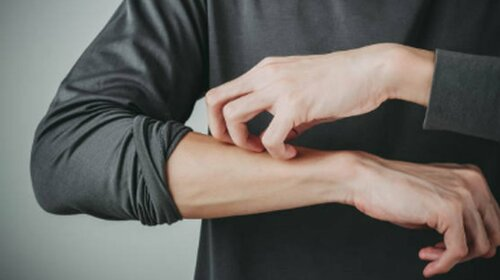 Ученые назвали кожный симптом китайского вируса, который может быть единственным