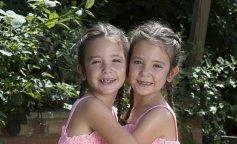 Сіамські близнюки народилися з одною черевною порожниною на двох: якими вони стали через 7 років (ФОТО)