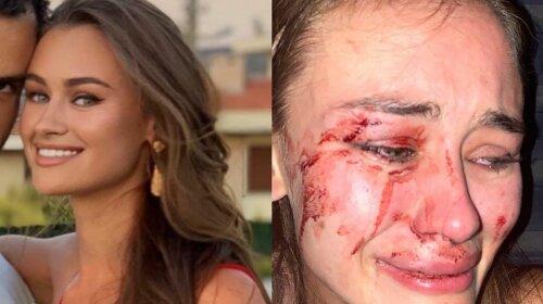 Украинскую модель Дарью Кирилюк жестоко избили в Турции: все подробности происшествия