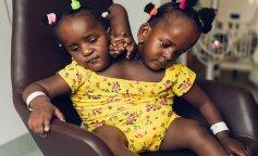 Отец решил спасти одну из сиамских близнецов, пожертвовав второй