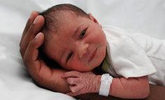 В Україні народилася дівчинка з пухлиною розміром з половину тіла