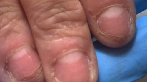 Девушка пришла на маникюр с такими ногтями: то, что сделал мастер, выглядит потрясающе (видео)