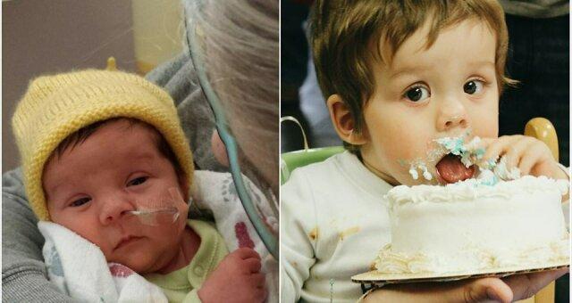 недоношенные дети, фото, до и после