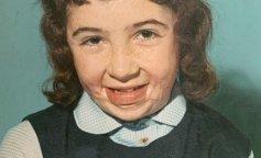 9-річна дівчинка отримала 75% опіків тіла: як вона виглядає через 50 років (ФОТО)