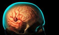 mri-for-brain-tumors