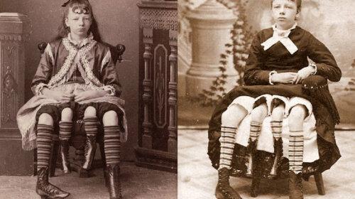 Як склалася доля дівчинки, яка народилася і жила з чотирма ногами (ФОТО)