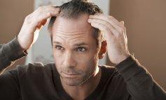 Почему лысеют мужчины: Уляна Супрун назвала главную причину
