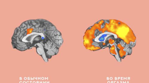 Как стать счастливым раз и навсегда: Советы нейрохирургов