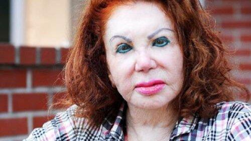 Сделали пластические операции и поплатились карьерой: актрисы, которые изменили внешность и пострадали (ФОТО)