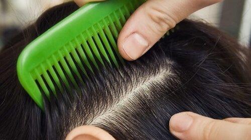 Уляна Супрун розповіла, як позбутися вошей і чи допоможе гоління голови налисо