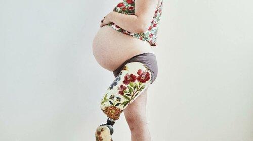 Удивительная фотосессия беременной с ампутированной ногой