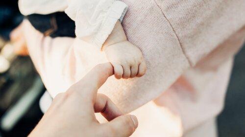 Ребенок-амфибия: девочка родилась с выпученными глазами и перепончатыми пальцами из-за редчайшего синдрома (ФОТО)