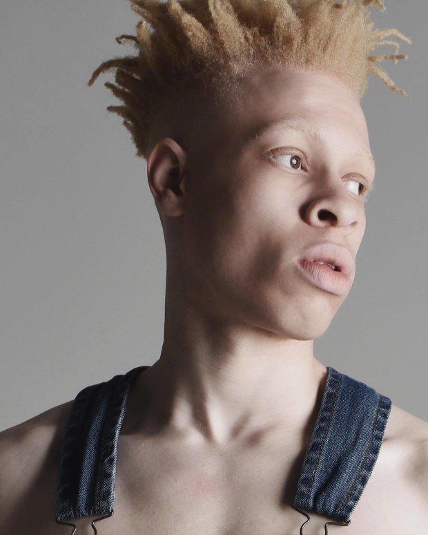 фото альбиносов африканцев лыжный марафон это