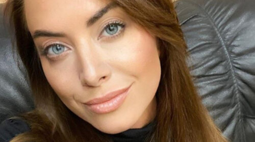 Превратилась в «утку»: сестра Жанны Фриске похвасталась пластикой лица – так до зависимости недолго (ФОТО)