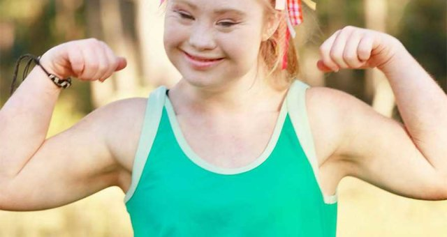 похудение: девушка с синдромом Дауна