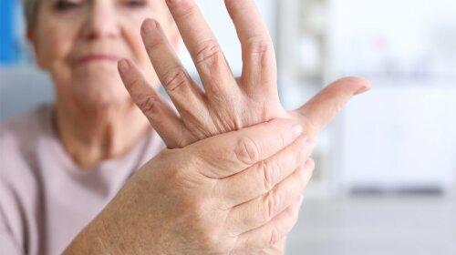 Как распознать рак легких по рукам: три действенных способа