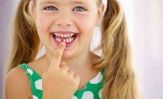 Молочные зубы у детей, молочные зубы у детей, у ребенка выпал молочный зуб, молочные зубы у детей сх