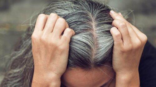 Доктор Комаровський назвав 5 причин ранньої сивини