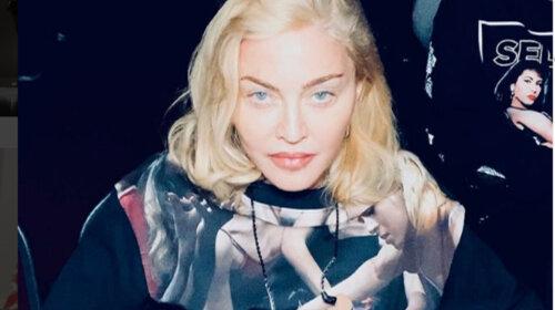 Тепер доведеться ходити з тростиною: Мадонна отримала серйозну травму на концерті в Парижі – останні подробиці (ФОТО)