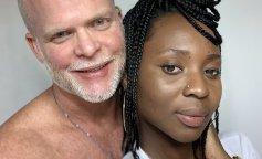 Женщина считает, что странный способ лечения делает ее красивее