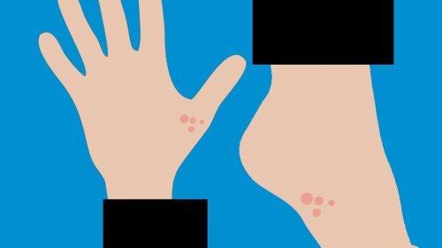 Грибок шкіри: причини виникнення, сиптомы, лікування