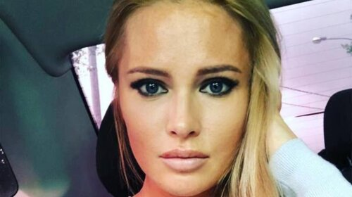 Губи-восьминоги: 43-річна Дана Борисова зважилася на модну пластику губ