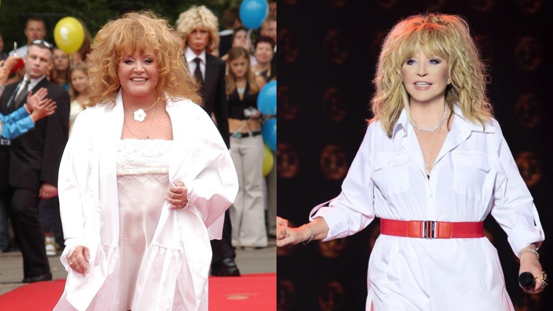 Пугачева похудела фото до и после