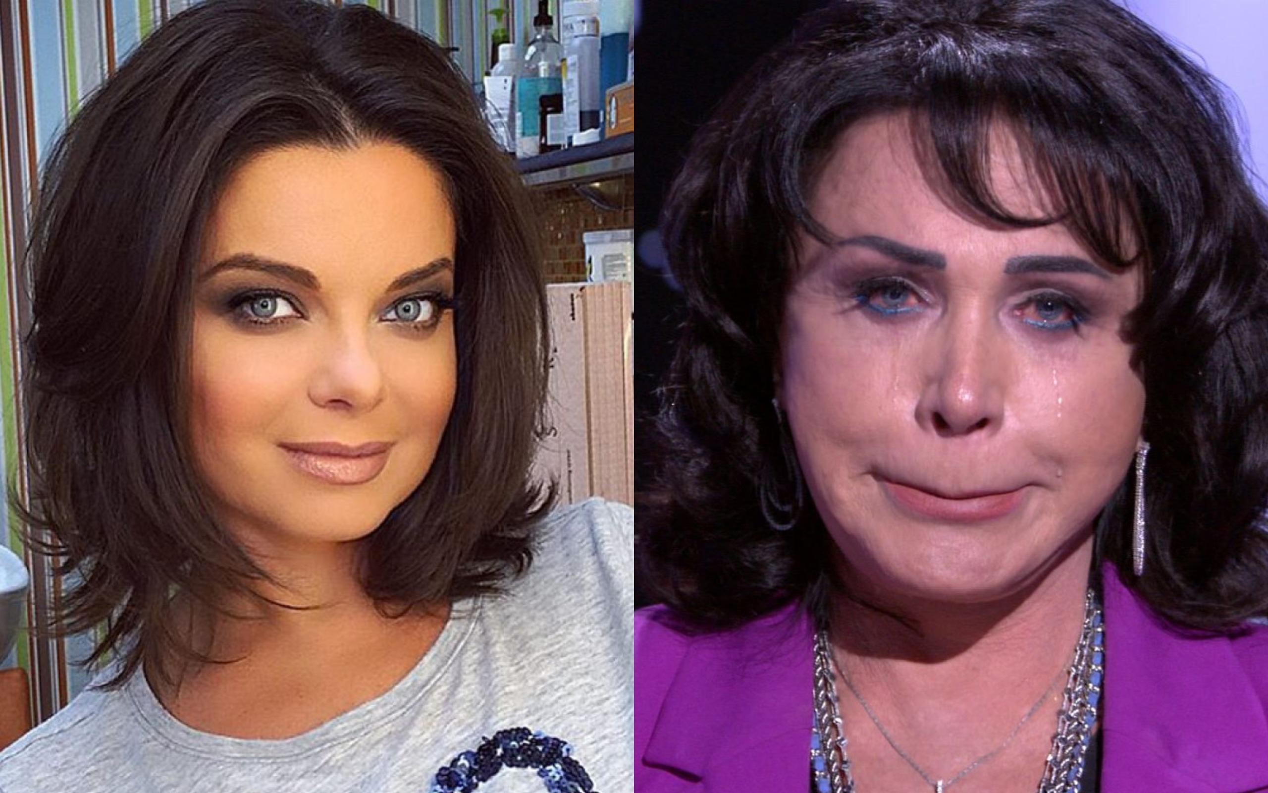 отсортированы количеству наташа королева фото до и после пластики глаза